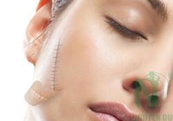 Giải pháp điều trị sẹo và vết thâm