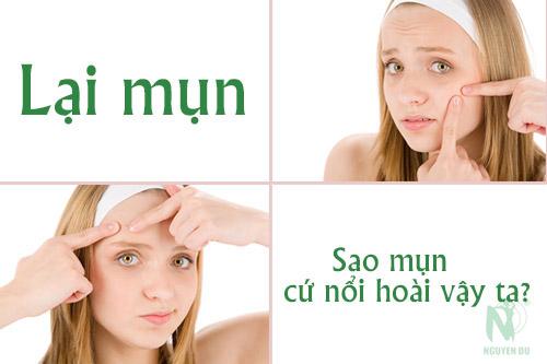 7-nguyen-nhan-gay-nen-mun-cam