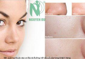 Điều trị lỗ chân lông to hiệu quả